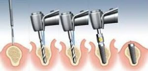 implantes2