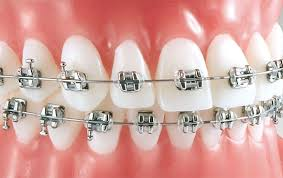 ortodoncia-brackets-metalicos
