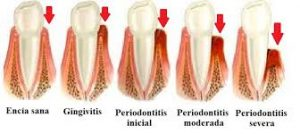 periodoncia3