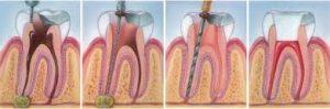 endodoncia2-1